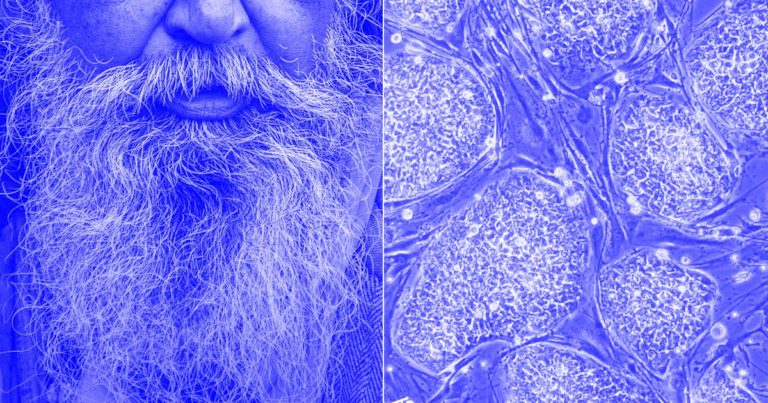 """""""Banking Your Biology"""" Could be the Answer to Anti-Aging – Futurism"""