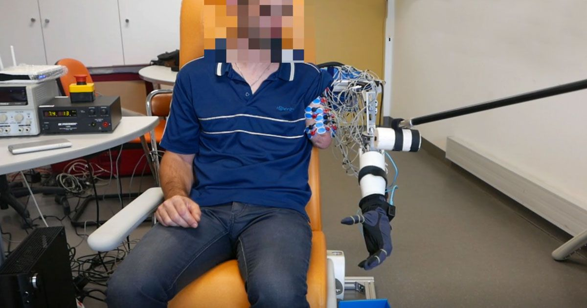 prosthetic arm phantom limb