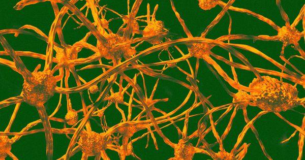 bone marrow transplants prevent aging